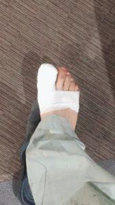 足指のケガ