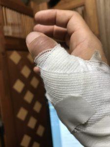 指のケガ 木工